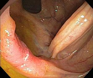 Early colon cancer