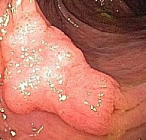 Nonpolypoid superficial elevated adenoma